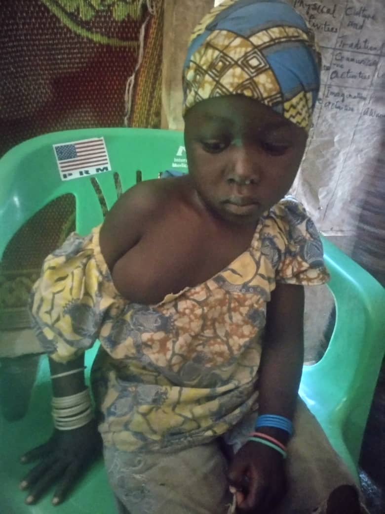 Four-year-old Falmata with her tumor before her surgery.