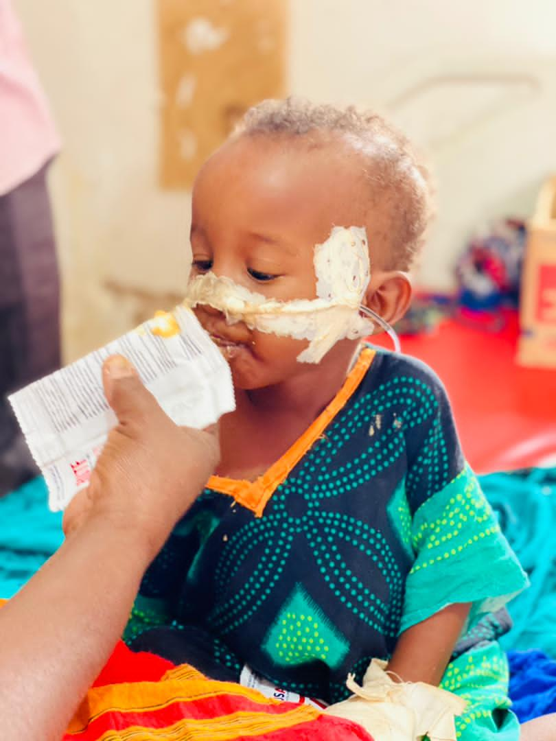 'I never thought my grandchild would recover.' When 36-month-old Ayan was diagnosed with malnutrition at Galkayco South Hospital, his grandmother Fadumo worried about his chances of recovery. Thankfully, with support from @eu_echo, our nutrition team helped Ayan recover quickly.